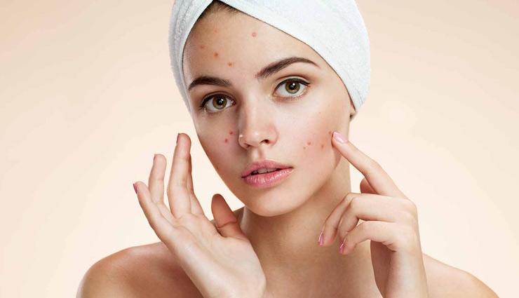 remedies for acne,home remedies,acne tips,valentines special,beauty tips,skin care tips