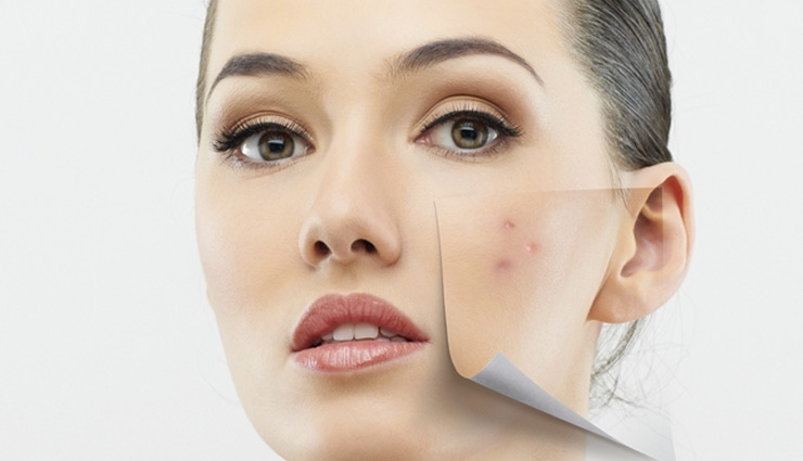 Valentines Special- 5 Super Fast Ways To Get Rid of Acne