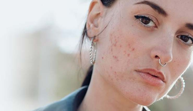 Want To Get Rid of Acne? Try These 5 Remedies