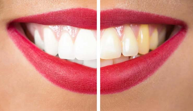 yellow teeth,remedies for yellow teeth,home remedies,beauty tips,teeth care tips