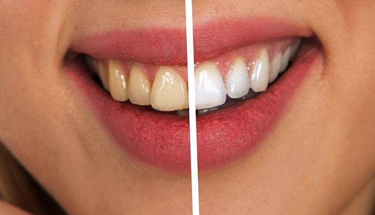 Ashamed of Yellow Teeth? Whiten Them Easily at Home