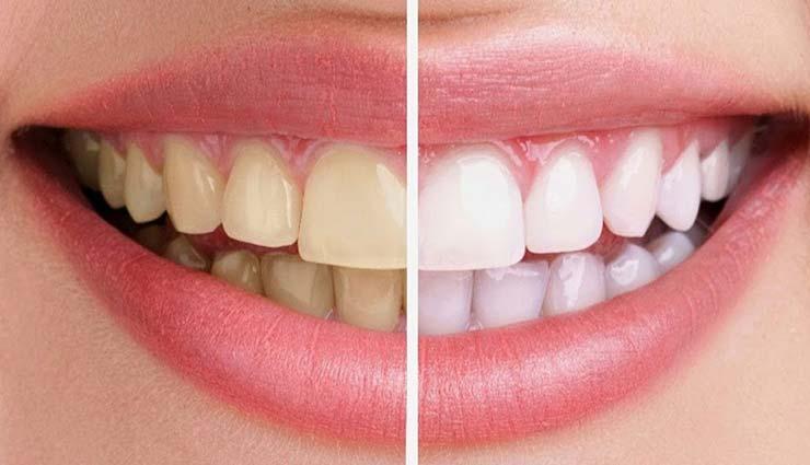 yellow teeth,remedies for yellow teeth,home remedies,beauty tips,teeth care tips