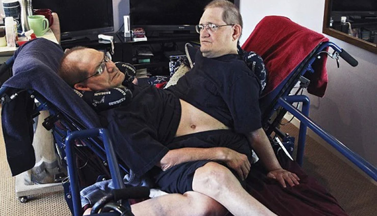 ronnie galyon,donnie,galyon,conjoined twins,ronnie and donnie gaylon die,conjoined twins record,weird news ,रॉनी और डॉनी गेलयन