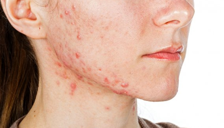 15 Effective Ways To Treat Blemishes