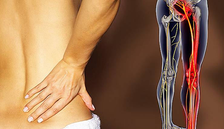 5 Exercises To Treat Nerve Pain