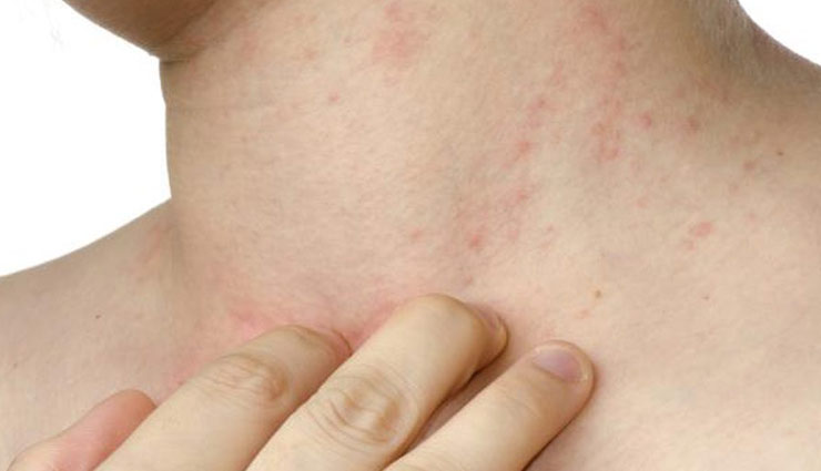 5 Ways To Prevent Your Skin From Fungus Infection