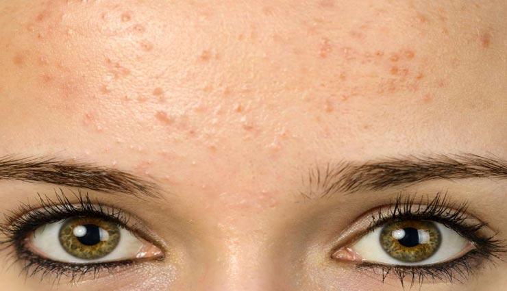 beauty tips,beauty tips in hindi,skincare tips,sensitive skin signs ,ब्यूटी टिप्स, ब्यूटी टिप्स हिंदी में, त्वचा की देखभाल, सेंसेटिव स्किन के संकेत