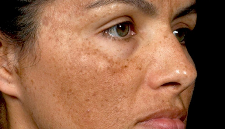 benefits of facial cupping,facial cupping,what is facial cupping,beauty tips,beauty hacks