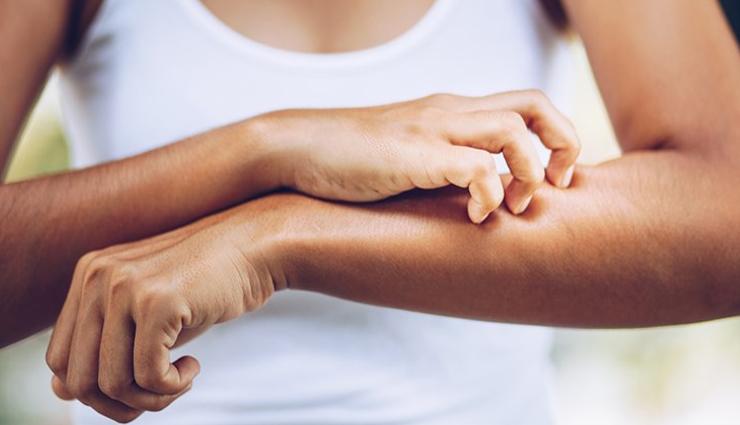 8 Home Remedies To Help Treat Mild Skin Rashes
