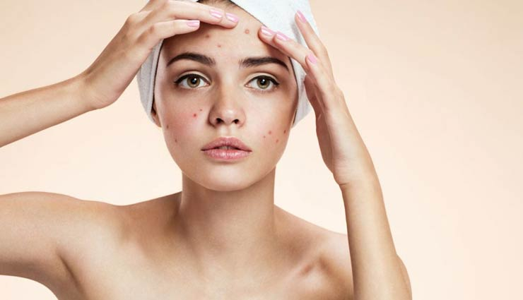 5 Essential Oils To Help You Get Rid of Skin Troubles
