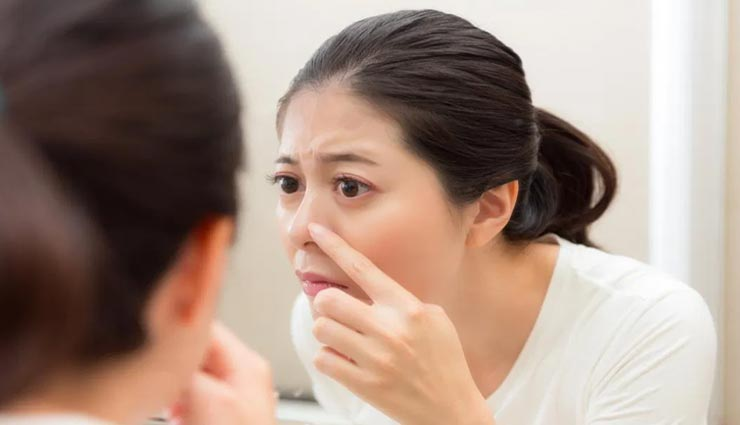 क्या आपकी नाक पर भी पड़ने लगे हैं चश्मे के निशान, इन तरीकों से करें इन्हें दूर