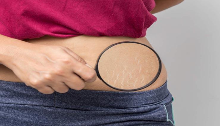 इस उपाय से दूर होगी स्ट्रेच मार्क्स की समस्या, बढ़ेगी त्वचा की खूबसूरती