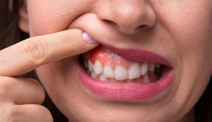 Useful Home Remedies For Swollen Gums