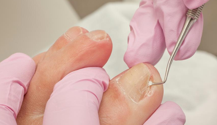 10 Self-care Measures to Manage Your Ingrown Toenail at Home