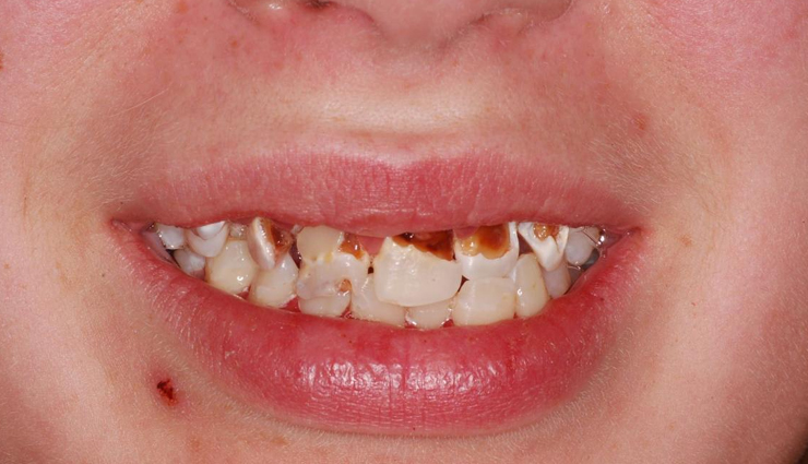 7 Home Remedies That are Effective for Treating Tooth Decay