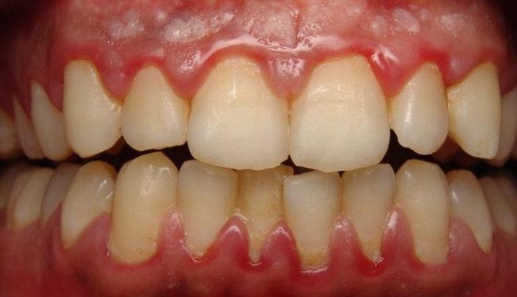 Health tips,teeth care,victims of pyorrhea,home remedies ,पायरिया, दांतों की देखभाल, घरेलू नुस्खे, पायरिया का इलाज, हेल्थ टिप्स