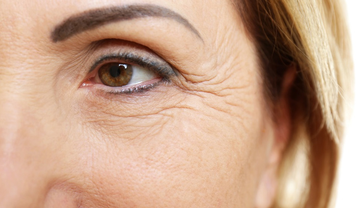 5 Easy Home Remedies To Get Rid of Wrinkles