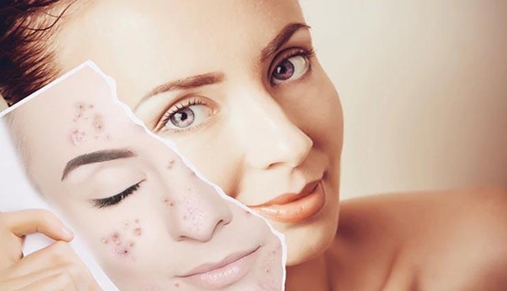 dry skin,acne,face mask,face,beauty ,வறண்ட சருமம்,முகப்பரு,பேஸ் மாஸ்க்,முகம்,அழகு