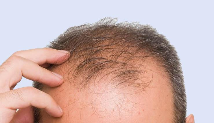 men,baldness,eggs,coconut oil,bananas ,ஆண்கள்,வழுக்கை,முட்டை,தேங்காய் எண்ணெய்,வாழைப்பழம்